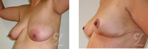 Cirujano Plástico Bogotá. Mamoplastia de Reducción (Breast Reduction). Disminucion de senos, Cirugía estética corporal.