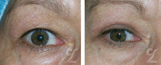 Cirujano Plástico Bogotá. Blefaroplastia (Blepharoplasty). Párpados. Cirugía estética facial.
