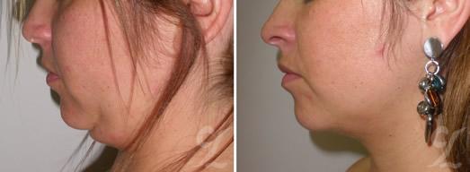 Cervicoplastia (Cervicoplasty). Cirujanos plásticos en bogotá reconocidos. Cirugía estética corporal.
