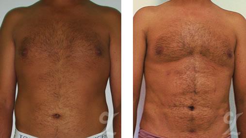 Cirujano Plástico Bogotá. Liposucción Masculina (Male Liposuction). Cirugía estética corporal. Lipoescultura en bogotá.