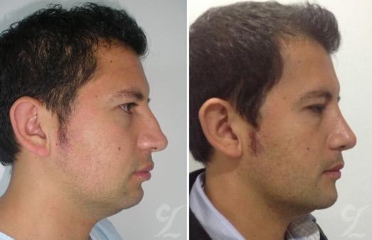Mentón (Chin Surgery). Cirujanos plásticos en bogotá reconocidos. Cirugía estética facial.