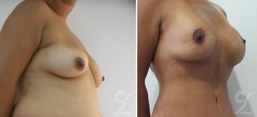 Pexia mamaria (Breast Lift). Cirujanos plásticos en bogotá reconocidos. Cirugía estética corporal.
